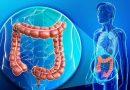Nanofarmaco frena la metastasis del cancer de colon